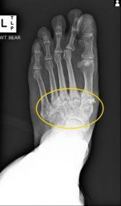 midfood arthritis